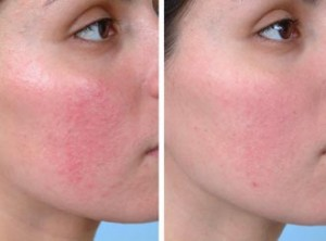 Rosacea_before_and_after-300x222